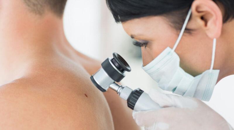 Hautkrebs Vorsorge